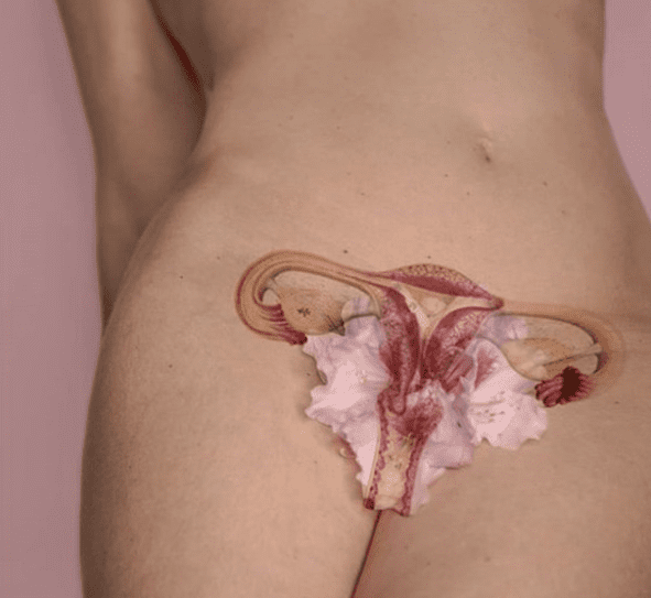 infection sexuellement transmissible